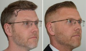 Hair Transplant in Rawalpindi Before and After