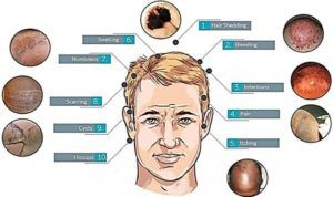 Side Effects of Hair Transplant Infographic